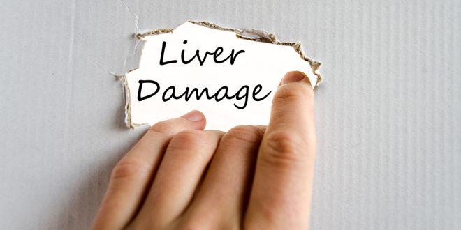Liver-Doctor-Symptoms-Of-Liver-Damage-660x330
